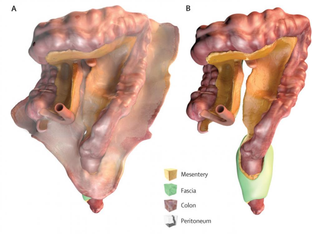 Le mésentère (en jaune), structure du tube digestif reliant l'intestin aux parois abdominales. © J Calvin Coffey / The Lancet Gastroenterology & Hepatology